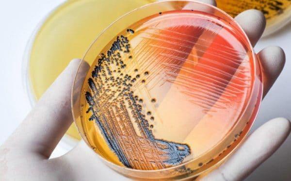 Бактерии сальмонеллы приспосабливаются к воздействию антибиотиков