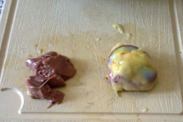 Печень и желудок
